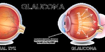 Glaucoma Health Message at Fresh Therapeutics