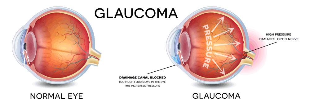 Glaucoma Help Compounding Pharmacy